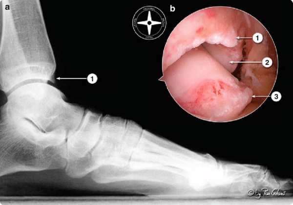 Imagen lateral de rayos x y artroscopica (b) que muestra osteofitos de tobillo 1, 2 y 3