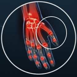 Artrosis de pulgar