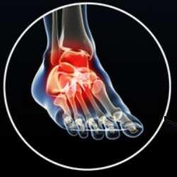 Artrosis de pie