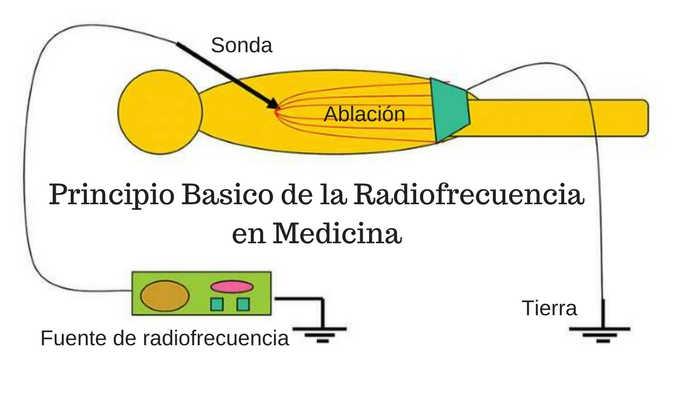 ablación del nervio genicular por radiofrecuencia enfriada para dolor por artrosis de rodilla