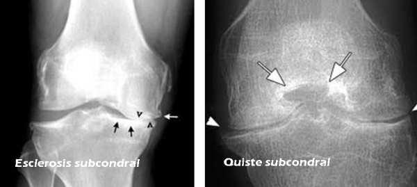 Esclerosis subcondral: síntomas causas tratamiento