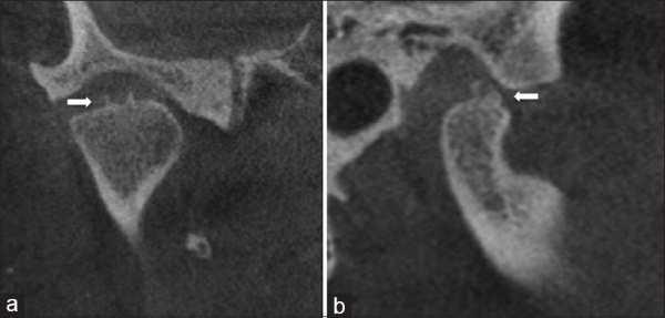 Imagen de dos osteofitos en la superficie superior del condilo