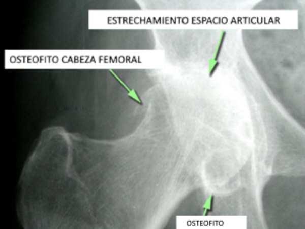 Radiografia Osteofito y daño articular de cadera