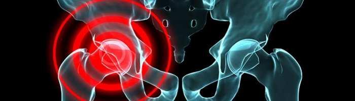 Ocupacion y riesgo de artrosis
