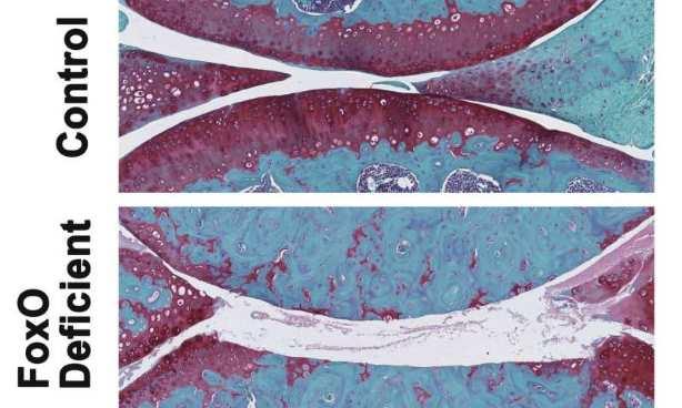 Proteínas clave controlan el riesgo de artrosis durante el envejecimiento