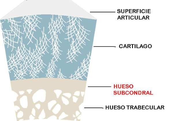 El hueso subcondral y el desarrollo de la artrosis