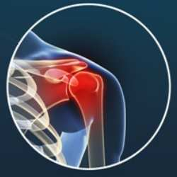 Artrosis de hombro