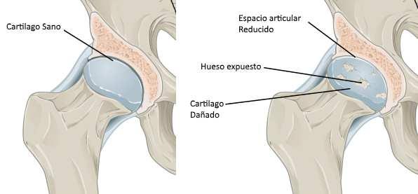 Etapas de la artrosis