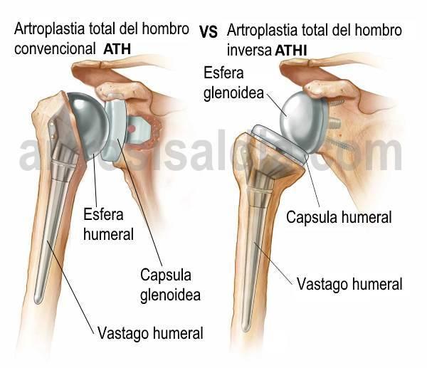Artroplastia total del hombro vs Artroplastia total inversa del hombro 1