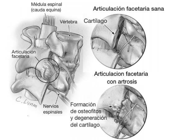 Artrosis de columna degeneración del cartílago de la articulación facetaria y formación de osteofitos