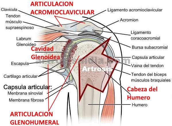 Descripción gráfica de la artrosis de hombro